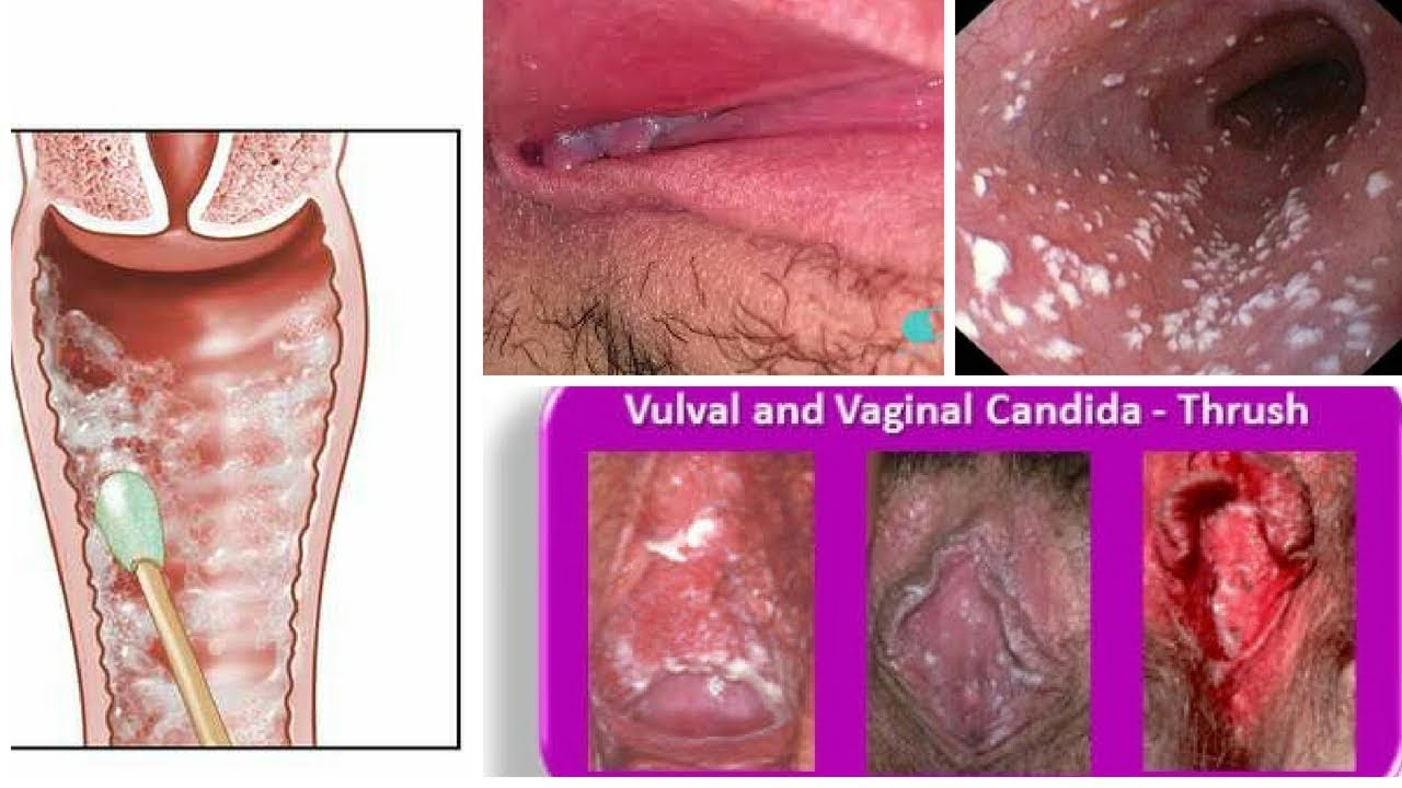 Female Genital Inflamation