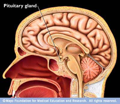 Gland Pituitary Swollen