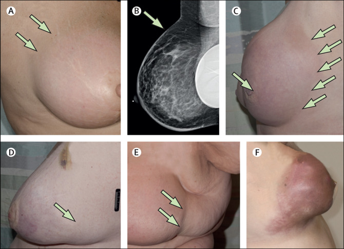 Inflamatory Breast Cancer Information