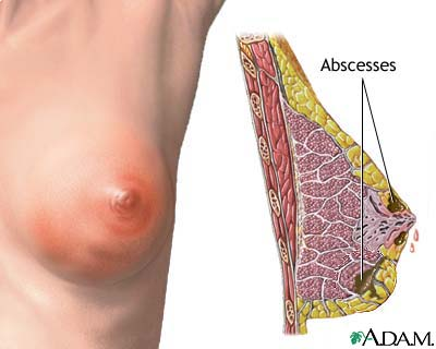 What Causes Breast Inflamation